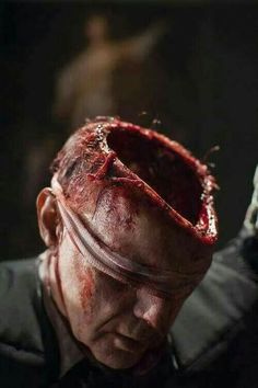 Photo of Hannibal - Episode - Hassun for fans of Hannibal TV Series 36794517 Hannibal Episodes, Hannibal Tv Series, The Crow, Prosthetic Makeup, Sfx Makeup, Face Off, Diy Halloween, Scream, Creepy