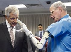 Advanced prosthetic arm is approved for US market