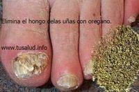 Infecciones Hongos - Los hongos en las uñas son una infección que preocupa a muchas personas debido a que estropea el aspecto de las manos y a que puede traer co... Investigadora Médica, Nutricionista, Consultora de Salud y Ex Paciente de Infecciones por Hongos Le Enseña