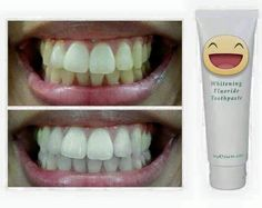 Just want to share sobrang AMAZED ako with this whitening toothpaste! This is from a friend and this result happened in just 3 days! Nakita ko yung result and I assure you this is for real! I am getting one! And nagpaorder pa ako for my friends this week. Can't wait!!! If you want some lemme know para isabay ko na kayo. Affordable nya! haha! #teeth #whitening #teethwhitening #affordable #ph #ap24 #toothpaste by frugalistaxmnl Our Teeth Whitening Page…