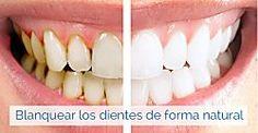 Tratamientos caseros para los dientes amarillos
