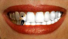 Отбеливание зубов: прогресс последних 25 лет