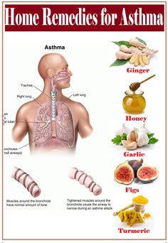 Asthma is a common lung disease which causes difficulty in breathing. Asthma occurs when you breathe, the air goes from your nose or m. Home Remedies For Dizziness, Asthma Remedies, Natural Home Remedies, Herbal Remedies, Health Remedies, Asthma Symptoms, Nutrition Tips, Health And Nutrition, Health Tips