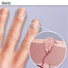Natural Cure For Warts - How To Cure Warts Naturally   Home Remedies, Natural Remedy