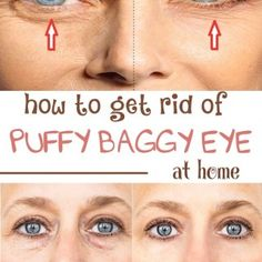 How to get rid of puffy baggy eye at home As we age , the skin below eyes start to sag, creating under-eye circles or bags. As we are getting old , our muscle are not able to hold the fat back and this leaves the face with gravity and creases Beauty Tutorials, Beauty Hacks, Beauty Tips, Beauty Makeup, Diy Beauty, Cosmetic Fillers, Under Eye Bags, Eye Wrinkle, Puffy Eyes