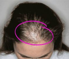 15 Causes of Women's Hair loss and How To Treat it