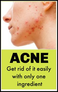 Acne Scars spoils the entire beauty of the face. Here are the simple remedies with natural kitchen ingredients to get rid of acne scars. Cold Remedies, Acne Remedies, Herbal Remedies, Acne Skin, Acne Scars, Bad Acne, Natural Remedies For Arthritis, Healthy Skin Tips, Remove Acne
