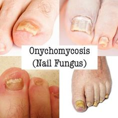 Onychomycosis Types Of Nail Fungus Causes And Symptoms Did You Know Some These Are Actually A Type Yeast Infection