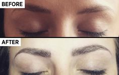 90dd2a63d5e It involves being pricked with lots of little needles. Lash Perm, Full  Brows,