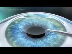 Smile Lazer | Dr. Bozkurt Şener - Katarakt Ameliyatı, lazer göz ameliyatı, smile lazer, yakın gözlük ameliyatı, multifokal göz içi lens