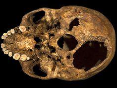 Los problemas dentales de Ricardo III de Inglaterra | Reflexiones de un primate