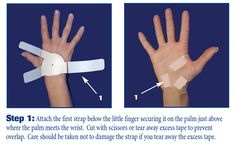 the carpal solution is applied in three easy steps and will cure Carpal Tunnel Syndrome even after a failed Carpal Tunnel Surgical Procedure.  The Carpal Solution Treatment was developed by Doctors