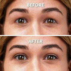 Beauty Tips For Glowing Skin, Beauty Tips For Face, Face Beauty, Beauty Skin, Basic Skin Care Routine, Beauty Care Routine, Face Lift Exercises, Face Massage, Face Contouring