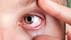 Punoitus voi olla merkki kuivista silmistä.