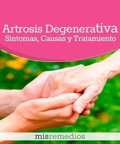 #Artrosis Degenerativa - Qué Es, Síntomas, Causas y Tratamiento #Remediosnaturales #enfermedades