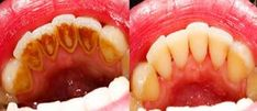 The mineral accumulation on teeth is called tartar. The amount of tartar increases in time and you should take care of it in order to prevent the occurrence of periodontitis. You can always visit y...