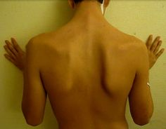 Stop shoulder injuries from hampering your daily life activities. Read on for shoulder impingement stretches that will help alleviate the pain. Winged Scapula Exercises, Best Shoulder Workout, Shoulder Exercises, Shoulder Rehab, Psoas Release, Exercise Physiology, Hip Problems, Psoas Muscle, Muscle Pain