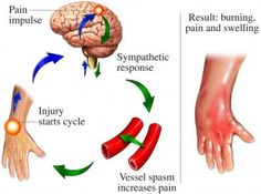 Complex Regional Pain Syndrome (RSD, Causalgia) (NYU Langone Medical Center)