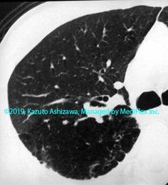 9. 先天性の異常 症例087:気管支閉鎖症 CT,『コンパクトX線アトラスBasic 胸部単純X線写真アトラス vol.1 肺』 Radiology
