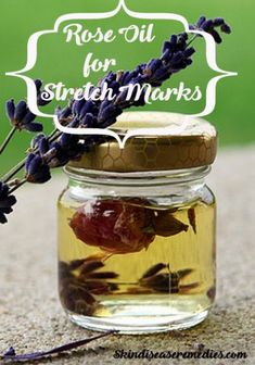 women get stretch marks during pregnancy. Use rose oil for stretch marks to lighten there appearance. Vitamins and minerals in rose oil improve collagen Stretch Marks On Thighs, Oil For Stretch Marks, Essential Oil Stretch Marks, Essential Oils, Laser Stretch Mark Removal, Stretch Marks During Pregnancy, Stretch Mark Remedies, Dresser, Noel