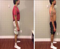 Stand Tall & Improve Your Posture. Come Try IntelliSkin Today @ Xperience Life #Chiropractic! #calgary #yyc