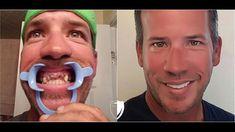 Dental Veneers by Brighter Image Lab Alternative to Glamsmile Dental Surgery, Dental Implants, Perfect Smile Teeth, Misaligned Teeth, Surgery Doctor, Dental Veneers, Smile Makeover, Smile Design, Dental Bridge