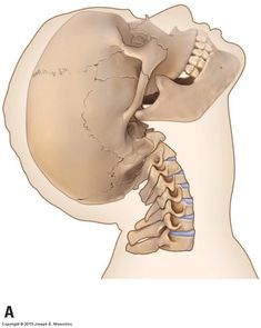 Table 1 shows average healthy ranges of axial motion of the cervical spine (head and neck), from the atlanto-occipital joint through the joint. Human Anatomy Drawing, Manga Drawing, Head And Neck, Learning, Menu, Google, Image, Menu Board Design, Studying
