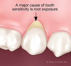 It sounds like you have generalized sensitivity from many teeth, and possibly the one you had filled recently may be the worst. Let's see if we can provide some direction to help you deal with this problem.