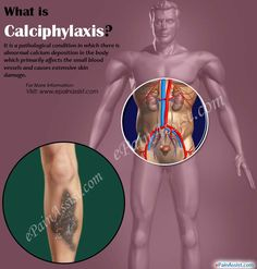 Calciphylaxis is a pathological condition in which there is abnormal calcium deposition in the body which primarily affects the small blood vessels and causes extensive skin damage. Know the causes, symptoms, treatment of calciphylaxis. Dialysis, Abdominal Pain, Blood Vessels, Love My Job, Nursing, Education, School, Health, Health Care