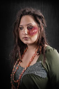 What if verbal abuse left the same scars as physical abuse? Would it be taken more seriously?   Weapon of choice project by Richard Johnson.