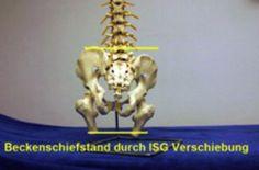 files/Patienten/Halswirbel Artikel/Beckenschiefst Sklett.jpg