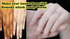 Treatment for hands wrinkles II How to Get Beautiful and Glowing Hands w...