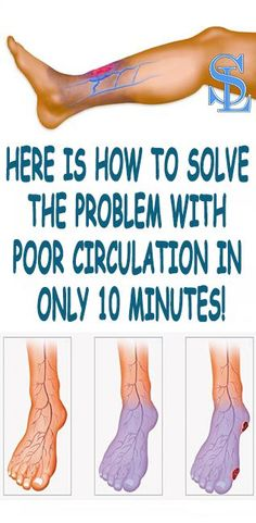 HERE IS HOW TO SOLVE THE PROBLEM WITH POOR CIRCULATION IN ONLY 10 MINUTES!