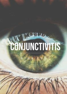 "The Conjunctivitis Curse (incantation unknown) is a curse that causes irritation in the target's eyes, causing them to swell shut like the infection conjunctivitis, commonly known as ""pink eye"". The Oculus Potion ends the effects of this curse."