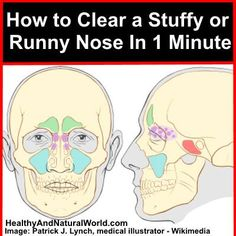 Stuffy Nose Remedies Instead of using over the counter nasal sprays - try this all natural technique to clear a stuffy nose in 1 minute. - Instead of using over the counter nasal sprays - try this all natural technique to clear a stuffy nose in 1 minute. Home Health, Health And Wellness, Health Care, Health Fitness, Natural Home Remedies, Natural Healing, Health And Beauty Tips, Massage Therapy, Natural Medicine