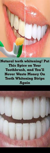 Best Teeth Whitening Techinque