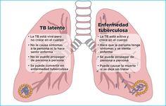 Resultado de imagen para tratamiento farmacologico de la tuberculosis