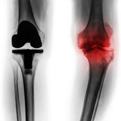 Remedies For Knee Pain What to expect before, during, and after Knee Replacement Surgery - More than total knee replacement surgeries are performed in the United States every year. With people working longer (and weighing more) that number is… Knee Replacement Recovery, Knee Replacement Surgery, Joint Replacement, Knee Surgery Recovery, Knee Bones, Knee Strengthening Exercises, Home Remedies For Arthritis, How To Strengthen Knees, Knee Pain