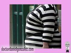 Cáncer de Mama y Obesidad (Parte 1). Primer video de una serie que describe la relación entre la obesidad y el cáncer de mama a lo largo de la vida de la mujer.