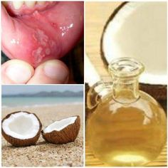 Coconut Oil - A Natural Mouth Ulcer Cure ~ MediMiss