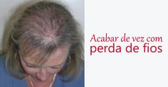 Este óleo é poderoso para renovar os cabelos e acabar de vez com a perda de fios Hair Beauty, Hair Falling Out, Immune System, Strands, Beauty, Cute Hair
