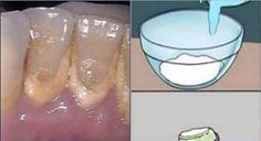 Раствор, удаляющий зубной камень за 2 минуты!