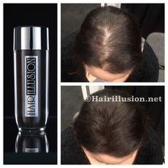 Hair Illusion Womens Hair Loss Hair Fibers Not Toppik Caboki Xfusion Dark Brown #HairIllusion
