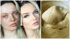 5 Remedios caseros para curar el acné para siempre