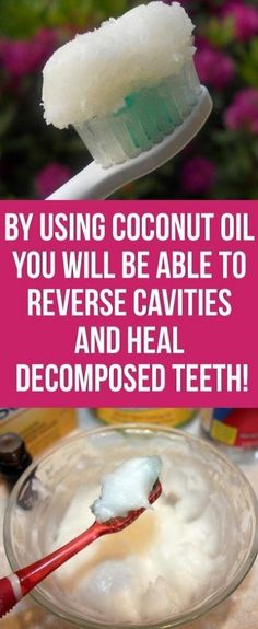 By Using Coconut Oil You Will Be Able To Reverse Cavities And Heal Decomposed Te… - Oral Care World Oral Health, Dental Health, Dental Care, Health Care, Teeth Health, Healthy Teeth, Health Diet, Stevia, Advantages Of Coconut Oil