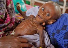 Os Reflexos da Vida: A fome e a pobreza do mundo