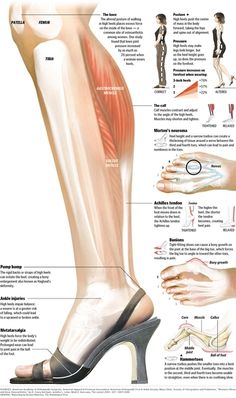 What high heels do to your feet/body. It's a shame- I wear 5 inch heels every single day increase muscle bad posture Soleus Muscle, Running Injuries, Jessica Parker, Bad Posture, Sciatica, Sciatic Nerve, Injury Prevention, Feet Care, Acupuncture