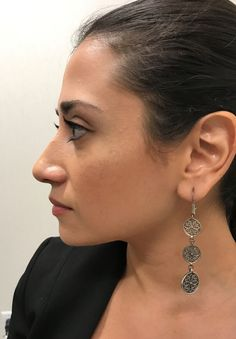 After photo of female treated with Restylane Lyft for Cheek Contouring Cheek Contouring, Diamond Earrings, Drop Earrings, Cosmetics, Female, Drop Earring, Diamond Drop Earrings