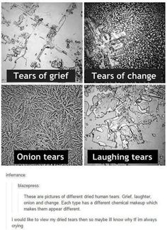 Tears of grief: blank with cube like things and lines. Tears of change: just like a television's static. Onion tears: like a plant. Laughing tears: all over the place The More You Know, Good To Know, Things Under A Microscope, E Mc2, Just Dream, Wtf Fun Facts, Random Facts, Random Science Facts, Alien Facts