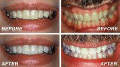 Best teeth whitening gel cosmetic dentistry teeth whitening,dentist recommended whitening how much is teeth whitening,opalescence whitening sensitive teeth whitening. Teeth Whitening Methods, Whitening Skin Care, Natural Teeth Whitening, Whitening Kit, Teeth Bleaching, Teeth Care, Branding, White Teeth, Home Remedies